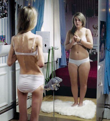 POZE: Anorexia si efectele ei distrugatoare
