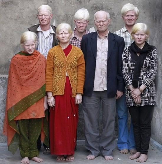 POZE: Asa arata cea mai mare familie de albinosi din lume, Pullanii!