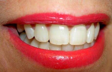 Albirea dintilor la femei
