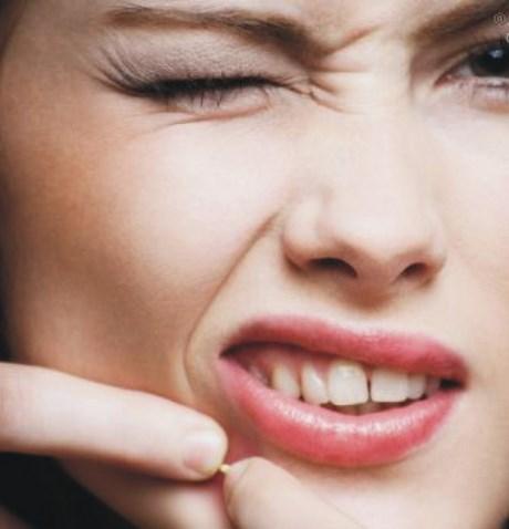 Ce este acneea si de ce apare