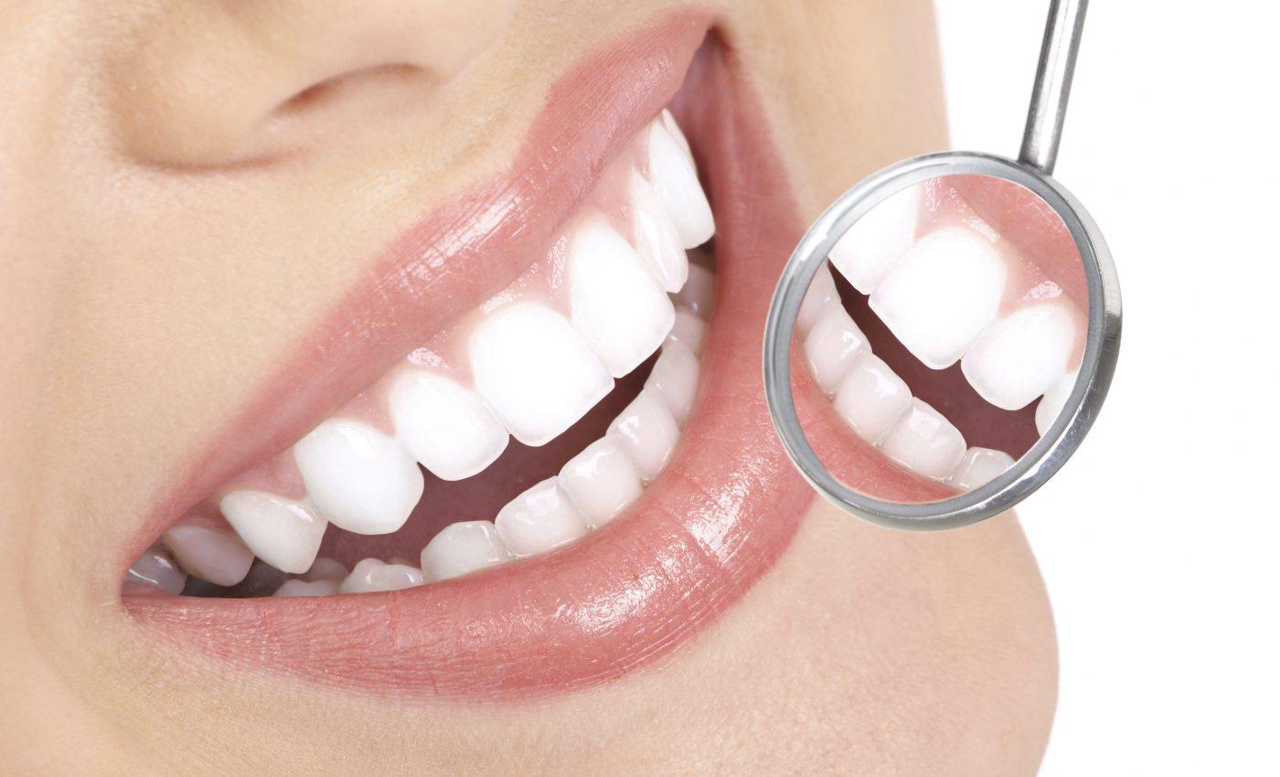 Cum iti poti pastra dintii cat mai albi